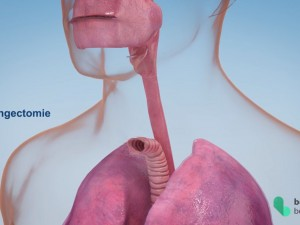 Medische animatie video redt levens!